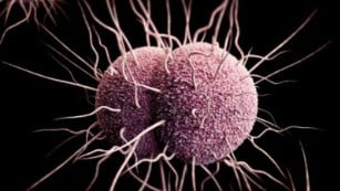 Doctors raise alarm about ancient HTLV-1 virus: 'Prevalence is off the charts' in Australia