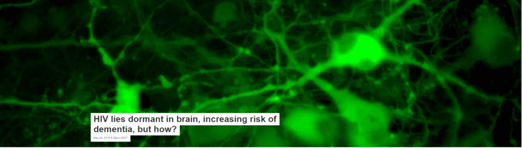 HIV lies dormant in brain, increasing risk of dementia, but how?